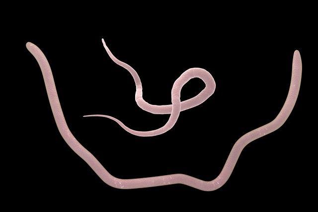 Ascaridíase: doença verminose mais comum do mundo