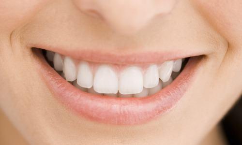 dentes brancos como clarear