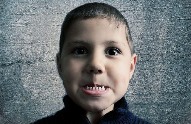 entenda-como-a-carie-e-formada-nos-dentes