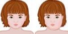 Caxumba: Saiba o que é e seus sintomas